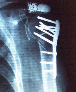 X-ray shoulder 2-11-2004
