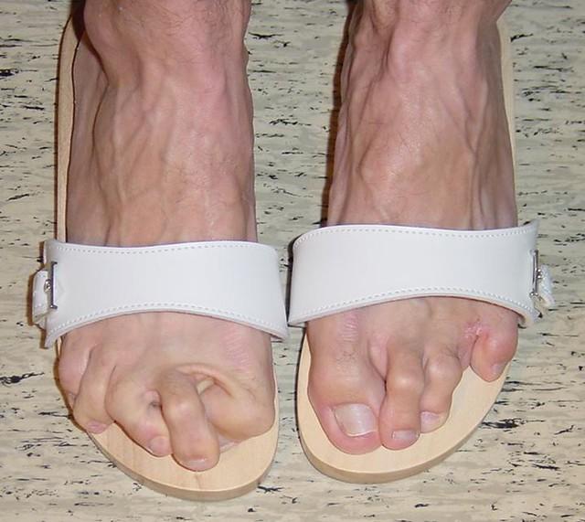 Map se1 ugly celebrity feet