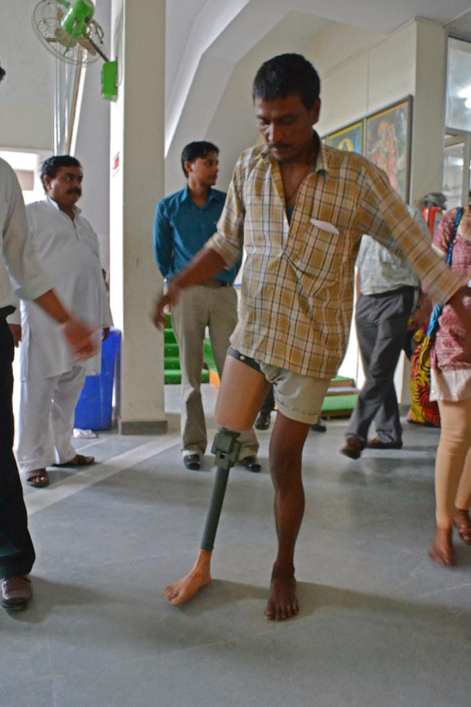 Новый обладатель протеза учиться ходить.
