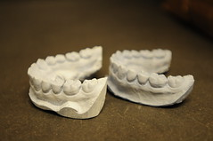 dental molds