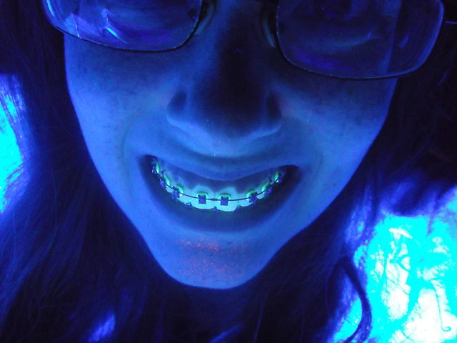 Glow-in-the-Dark Dental Braces – Light Up Your Smile - 1 ...