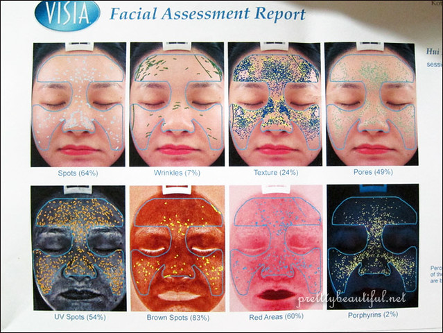 VISIA facial assessment report