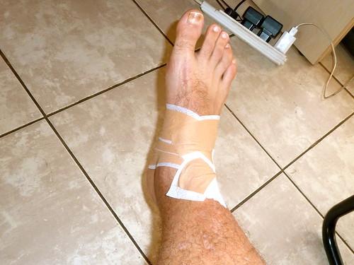 Injured foot!