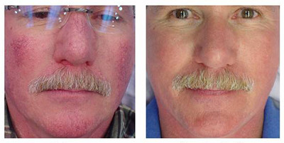Laser Treatment of Redness