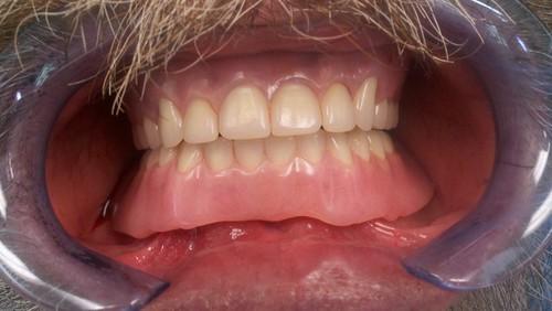 Custom Cosmetic Dentures. Tigard TenderCare Dental 11960 Pacific Hwy, Tigard, OR 97223 (503) 670-7088