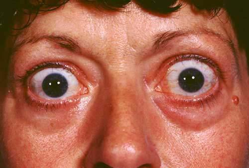 gangguan mata pada penyakit graves
