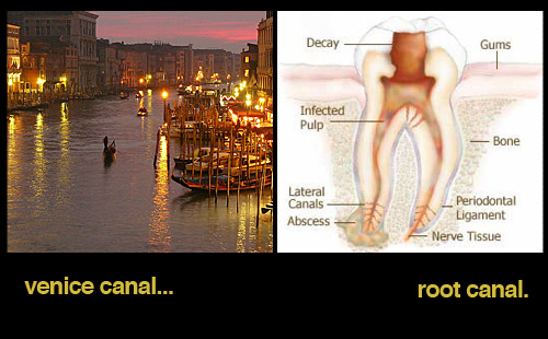 root-canal-boats