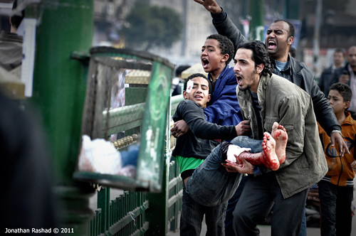 Young kid injured by army's live ammo at Tahrir square