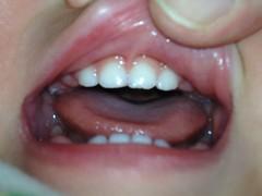 【とらちゃん】上の奥歯が生えてきました (2011/12/30)