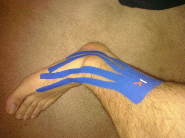 kt tape ankle support pdf