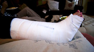 2012 Tib Fib Ankle Fracture 8484