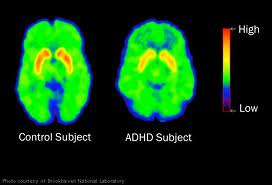 Symptoms of ADHD in Adults 1