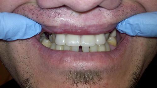 Removable Partial Dentures. Tigard TenderCare Dental 11960 Pacific Hwy, Tigard, OR 97223 (503) 670-7088