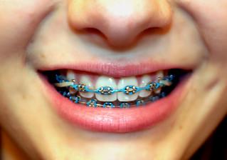how to put on elastics on braces easily