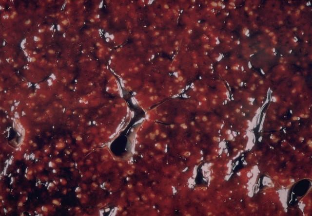 Miliary Tuberculosis Involving Spleen Flickr Photo
