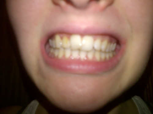 how to get rid of yellow teeth from smoking