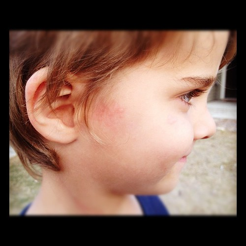 After a long fun day we came home and I found a quickly spreading rash/hives on Jack. sigh