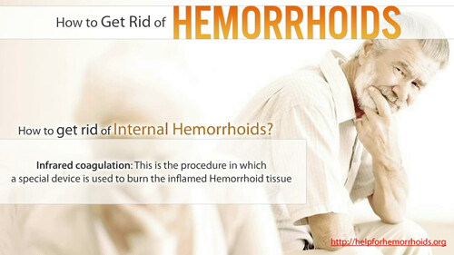 Much surgery how eyelid cost hemorrhoids does