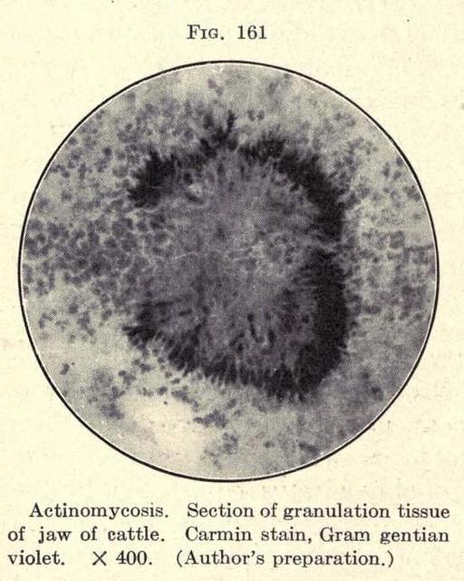 Header of actinomycosis