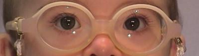 Niño con Síndrome de Down con gafas