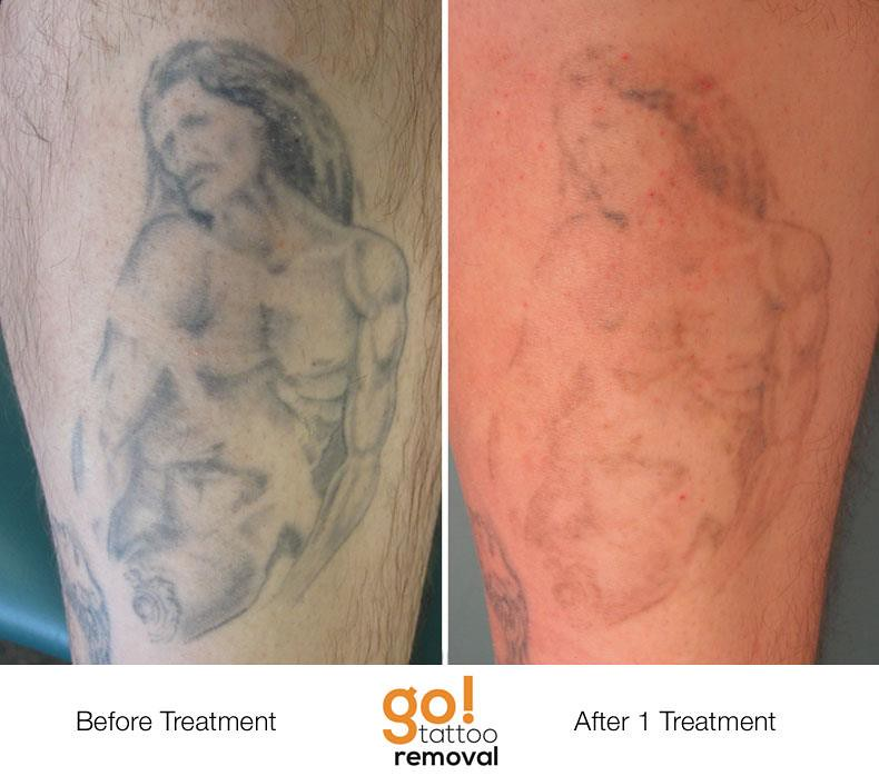 100 omaha cosmetic surgery removal laser