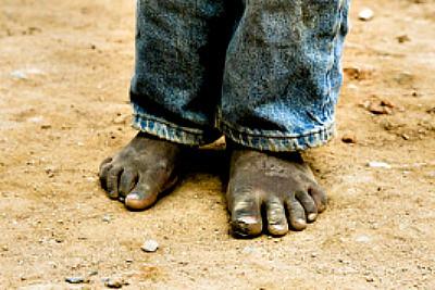 Sole Hope image of feet Resized Cropped