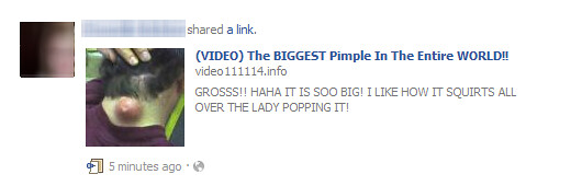 Biggest Pimple in the World