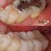 Reno NV Dentist - IPS emax - All Ceramic Crowns - GilmanDDS