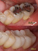 Reno NV Dentist - IPS emax - All Ceramic Crowns - GilmanDDS