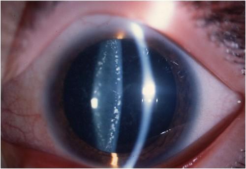 Existen diferentes tipos de catarata en función de la edad de la persona con síndrome de Down que las padece.