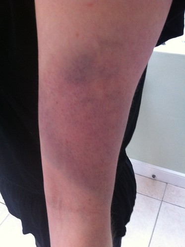 Bruise, getting nice purple now