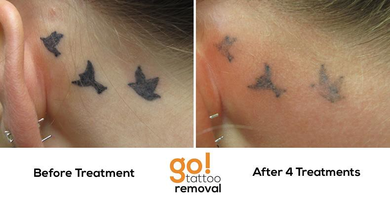 Laser tattoo removal progress photos allentown pa for Laser remove tattoo price