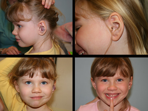 Pre op: Hemangioma of the ear. Post op: 1 month following excision of the hemangioma.  For more information on plastic and reconstructive surgery at St. Louis Children's Hospital, visit www.stlouischildrens.org/our-services/plastic-surgery/ear....