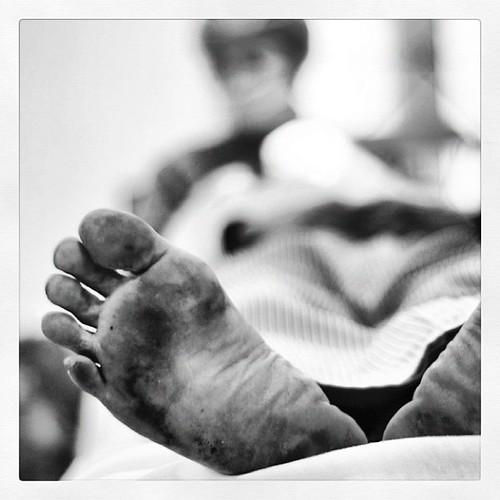 Dirty feet, happy patient