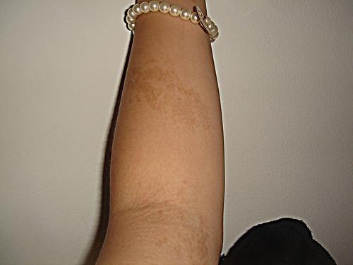 birthmark tattoo