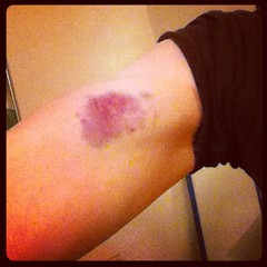 Oh, yeah. There's a funny story behind this bruise that I may share some day.