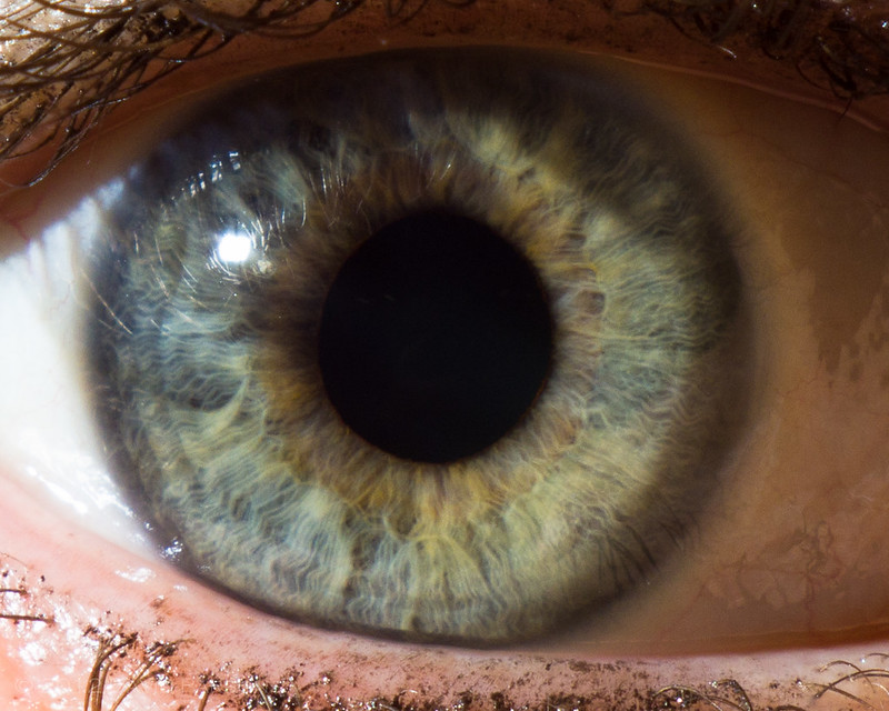 Green/hazel eye