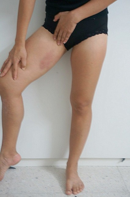 REVIEW - Coolsculpting by Clique Clinic - Before and after results of Rebecca Saw-001