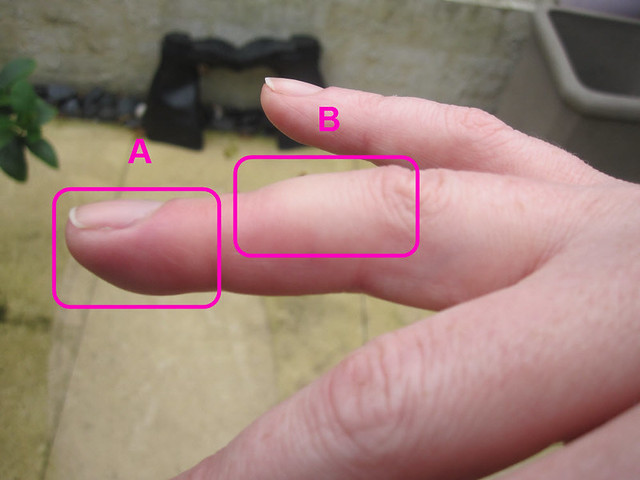 Pain Between Middle Finger And Ring Finger