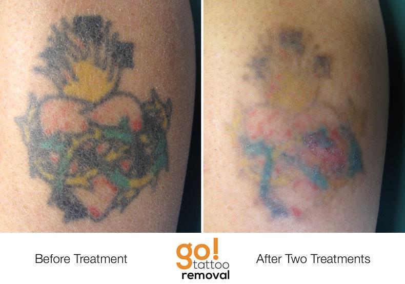 Laser Tattoo Removal Progress Photos | Allentown, PA