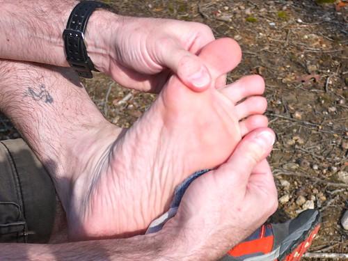 Hydropel vs. BodyGlide Blister Challenge