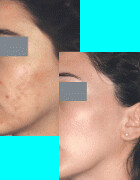 Microdermabrasion before and after scars photos