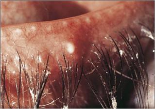 En general se trata de una enfermedad ocular leve, aunque molesta. Sin embargo, en algunos casos puede verse afectada la córnea de forma severa, e incluso comprometer la visión de la persona que la padece.