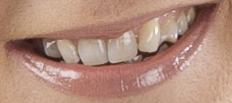 Adobe Photoshop - Hampaiden valkaiseminen