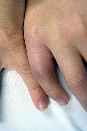 hurtfinger