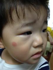 蚊に刺されたところが…(2012/5/18)