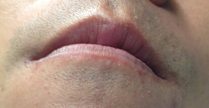 front lips