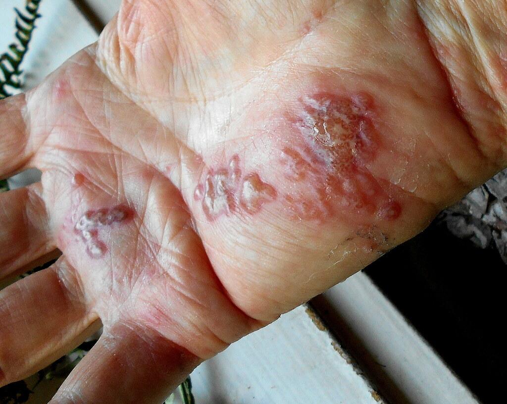 Herpes zoster - Shingles rash - 10th day