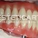 laboratorio_de_protese_dentaria_cad_cam-558