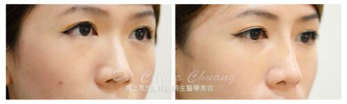 美上美醫學美容莊盈彥醫師利用玻尿酸打造完美鼻型